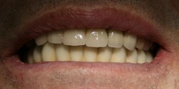 Полное протезирование мостовидными протезами с винтовой фиксацией на имплантатах Dentium фото после лечения