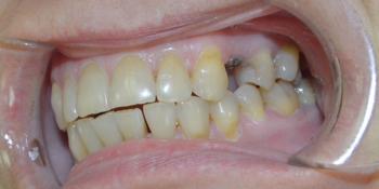 Удаление зуба с одномоментной имплантацией Астра Тек фото до лечения