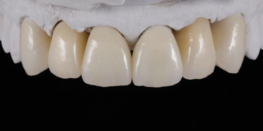 Цельнокерамические реставрации на зубы (виниры, коронки) и импантаты на индивидуальных абатментах из диоксида циркония на модели. Эстетическое протезирование передних верхних зубов с предварительным исправлением прикуса и импланта