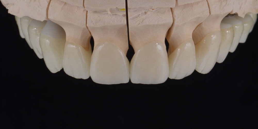 Цельнокерамические реставрации на зубы (виниры, коронки) и импантаты на индивидуальных абатментах из диоксида циркония на модели - верхняя челюсть. Тотальная стоматологическая реабилитация пациента: 12 имплантов + 28 виниров