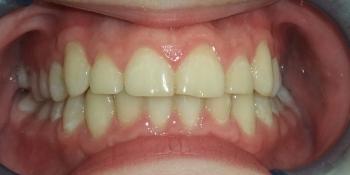 Исправление скрученного положения зубов верхнего и нижнего зубного ряда фото после лечения