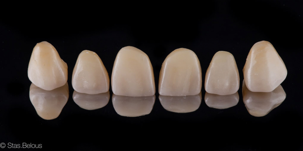 Цельнокерамические коронки, изготовленные на CEREC. Полное воссоздание верхнего зубного ряда