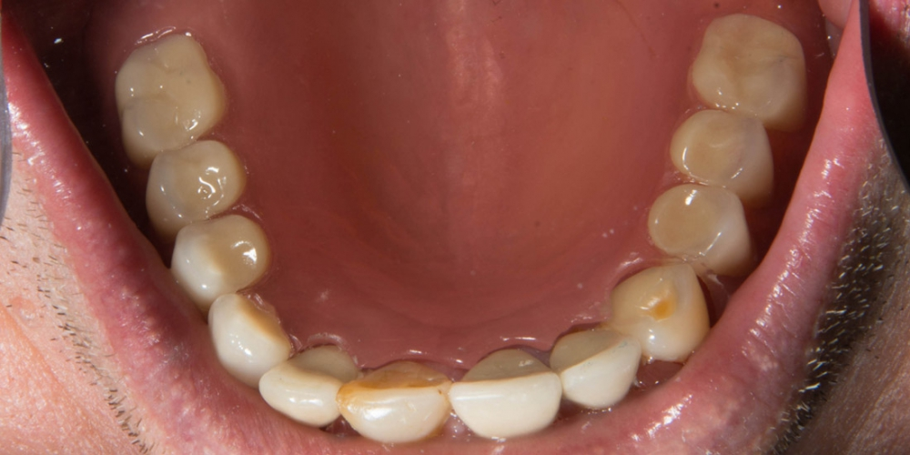 Нижняя челюсть после протезирования. Частично съемный протез на верхнюю и нижнюю челюсть