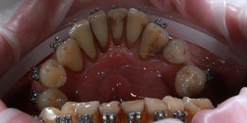 Профессиональная гигиена полости рта в процессе ортодонтического лечения фото до лечения