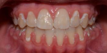 Результат исправления неровности зубов на верхней и нижней челюстях фото после лечения