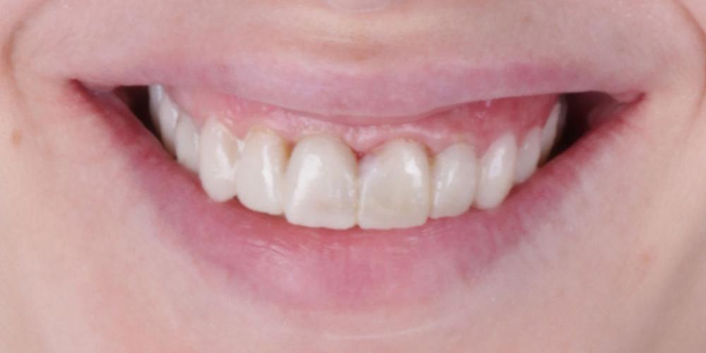 Примерка будущих зубов. 5 имплантатов, 28 керамических реставраций, наращивание костной ткани, пластика десны