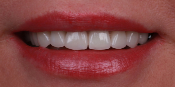 Протезирование зубов керамическими винирами и керамической коронкой на имплантате фото после лечения