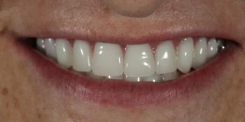 Устанение полной адентии двух челюстей при помощи установки 4 имплантатов на каждую челюсть фото после лечения