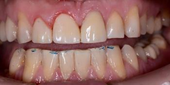 Срочный ремонт зуба, скол реставрации фото после лечения