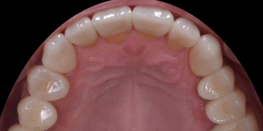 Готовая работа - верхняя челюсть. Тотальная стоматологическая реабилитация пациента: 6 дентальных имплантов, 28 керамических виниров