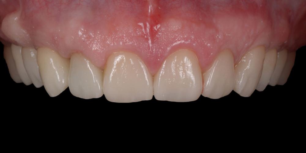 Готовая работа (цельнокерамические реставрации на зубах и имплантатах с опорой на индивидуальные циркониевые абатменты) в полости рта. Тотальная стоматологическая реабилитация пациента: 12 имплантов + 28 виниров