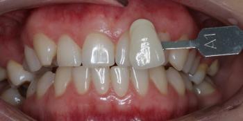 Результат отбеливания зубов ZOOM-4 с A1 до 0M фото до лечения