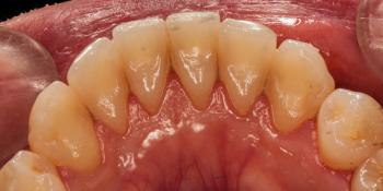 Результат профессиональной чистки зубов фото до лечения