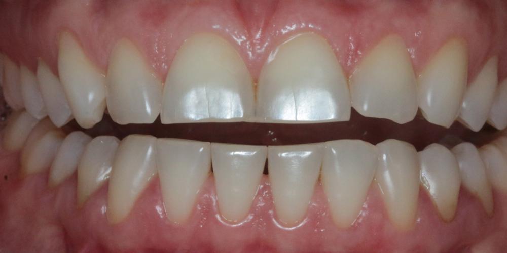 В начале лечения были сделаны диагностические оттиски зубов, сделаны гипсовые модели и смоделирована будущая планируемая форма керамических реставраций из воска. Эту композицию уже из пластмассы примерили во рту пациентки без обтачивания зубов. Внесли коррективы в форму и размер.  Этот этап позволяет заранее увидеть свою будущую улыбку и очень важен  при выборе формы  и размера зубов. Голливудская улыбка с помощью керамических виниров