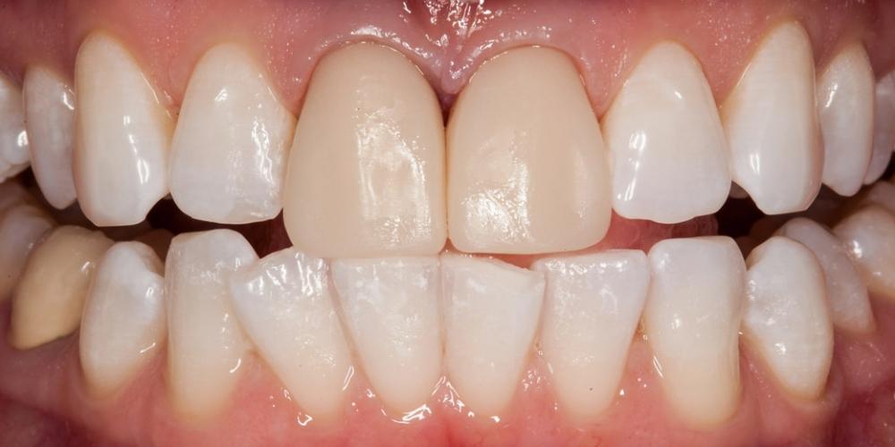 Временные реставрации установлены в полость рта. Цвет в данном случае не имеет значения, тк оценивается форма. Пациентка отправилась на двухдневный тест драйв с временными коронками, а я - занялся повторным анализом формы ее зубов и внес коррективы в цифровую моделировку. Ожидание белоснежной улыбки заняло 15 лет