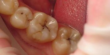 Реставрация двух зубов верхней челюсти фото до лечения
