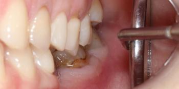 Установка 2 имплантов и 3 коронки на диоксиде циркония фото до лечения