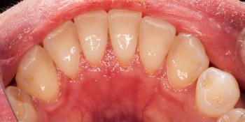 Результат профессиональной чистки зубов фото после лечения