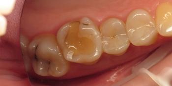 Убрать кариес и старые несостоятельные пломбы и сделать художественную реставрацию трех зубов фото до лечения