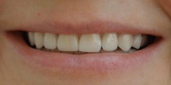 Преображение улыбки керамическими винирами Emax фото после лечения