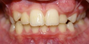 Раскрытие места для прорезывания клыков на верхней челюсти фото до лечения