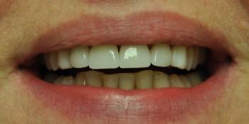 Пигментированные реставрации на зубах фронтальной группы фото после лечения