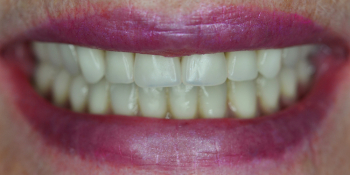 Протезирование всей челюсти по технологии All-on-4 фото после лечения