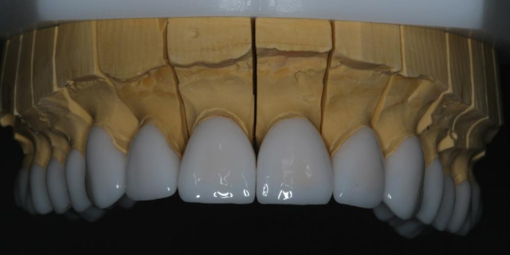 После согласования цвета и формы будущей улыбки было проведено пришлифовывание  и обработка эмали и сняты слепки для изготовления виниров и накладок empress e-max. На время изготовления постоянной реставрации, пациенту были изготовлены временные реставрации. Голливудская улыбка с помощью керамических виниров