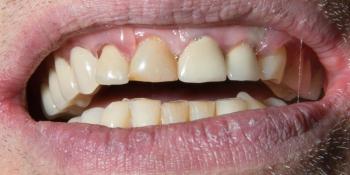 Частично съемный протез на верхнюю и нижнюю челюсть фото после лечения