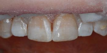 Результат наращивания двух передних зубов фото после лечения