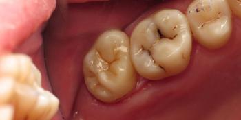 Лечение корневых каналов с последующей художественной реставрацией зуба фото после лечения