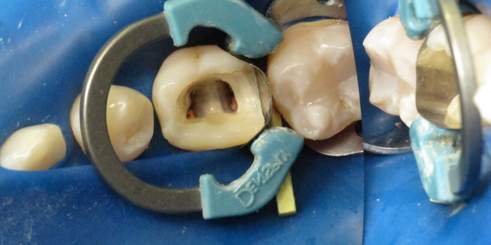 Реставрация разрушенного зуба