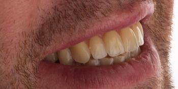 Протезирование зубов на 4 имплантах All-on-4 фото после лечения