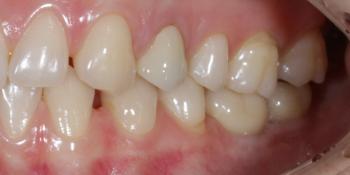Установка 2 имплантов и 3 коронки на диоксиде циркония фото после лечения