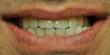 Устранены последствия травмы, закрыты тремы и диастемы, улучшена эстетика фото после лечения