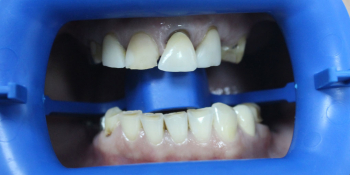 Протезирование при помощи коронок из диоксида циркония керамических виниров и дентальных имплантатов фото до лечения