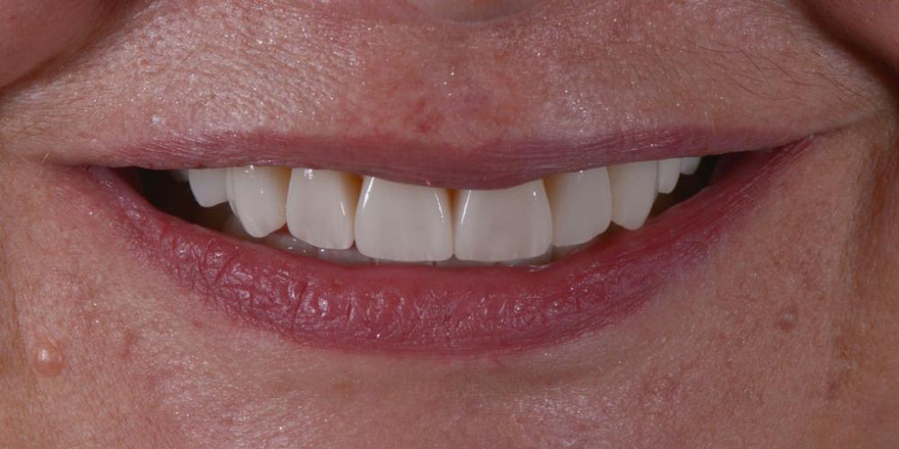 Готовая работа (цельнокерамические реставрации на зубах и имплантатах с опорой на индивидуальные циркониевые абатменты) в полости рта. Тотальная стоматологическая реабилитация пациента: 6 дентальных имплантов, 28 керамических виниров