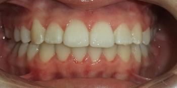 Результат исправление прикуса самолигирующей брекет-системой фото после лечения