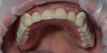 Бюгельный протез на верхнюю челюсть фото после лечения