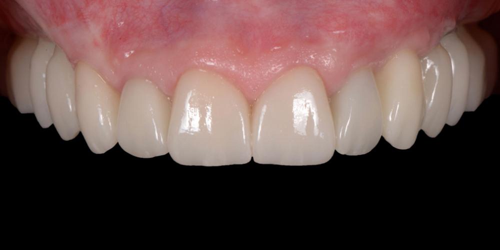 готовая работа (цельнокерамические реставрации на зубах и имплантатах с опорой на индивидуальные циркониевые абатменты) в полости рта Тотальная стоматологическая реабилитация пациента с использованием 13-ти имплантов и 28 виниров