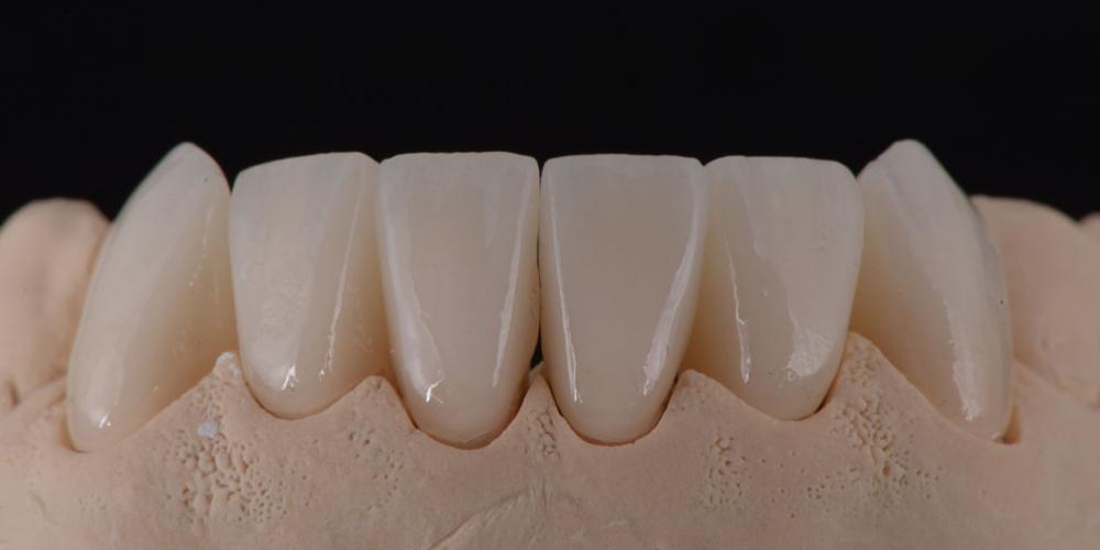 цельнокерамические реставрации на зубы (виниры) на модели, нижняя челюсть Тотальная стоматологическая реабилитация пациента с использованием 13-ти имплантов и 28 виниров