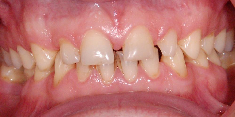 Пациент выразил недовольство по поводу промежутков между верхними и нижними зубами. Восстановление зоны улыбки винирами empress e-max