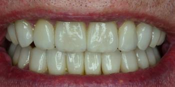 Восстановление зубов с помощью имплантов и керамических коронок  фото после лечения