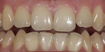Результат отбеливания зубов ZOOM, решение проблемы дисколорита зубов фото до лечения