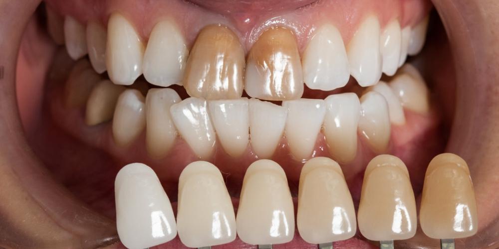 Первым этап лечения решено сделать домашнее отбеливание зубов, чтобы зубы в зоне улыбки стали яркими, а затем под них подобрать цвет будущих реставраций передних верхних резцов. Отбеливание заняло около двух месяцев, и результат превзошел все ожидания. Пациентка была довольна. Но на фоне белоснежныж зубов, выделялись два темных передних резца. Ожидание белоснежной улыбки заняло 15 лет
