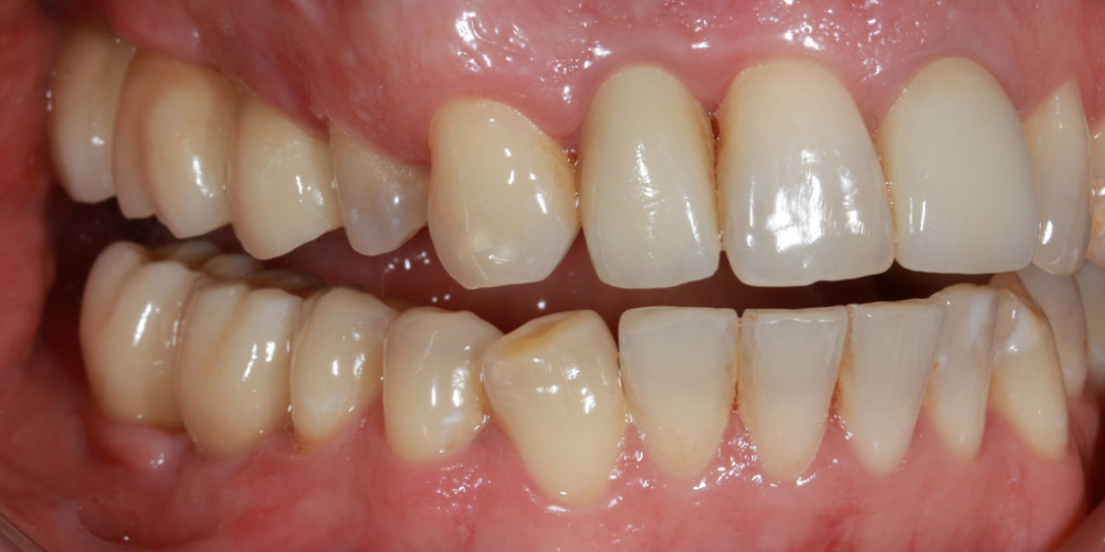 После приживления имплантов, проведено временное протезирование  для формирования профиля десны на верхней и нижней челюсти в области жевательных зубов и бокового резца, моделирования будущих зубных соотношений. Временнные коронки пациент были установлены на срок 45 дней. Восстановление жевателньых зубов (имплантация MIS Seven, безметалловые коронки)