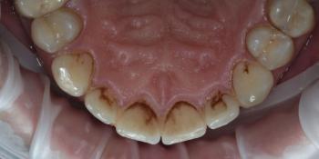 Результат профессиональной чистки зубов от темного налета, жалобы на неприятный запах фото до лечения