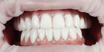 Комплексная реабилитация улыбки дентальными имплантами на верхней челюсти фото после лечения
