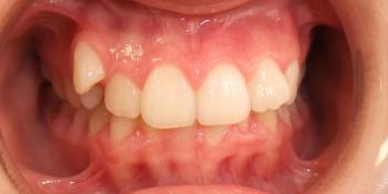 Результат исправление прикуса самолигирующей брекет-системой фото до лечения