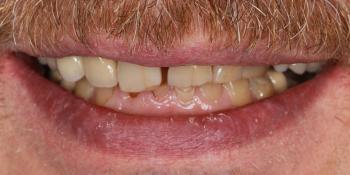 Тотальная стоматологическая реабилитация пациента: 12 имплантов + 28 виниров фото до лечения